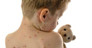 Γεγονός ο πρώτος θάνατος από ιλαρά στην Ελλάδα!