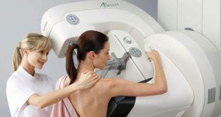 «Απαραίτητος ο έλεγχος ποιότητας στη μαστογραφία», τονίζει η ΕΕΜ