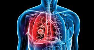 24 Μαρτίου: Παγκόσμια Ημέρα Φυματίωσης