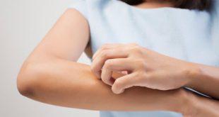 Συμφωνία-σταθμός μεταξύ LEO Pharma και Bayer στον τομέα της δερματολογίας