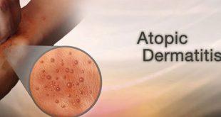 Πρώτη Παγκόσμια Ημέρα Ατοπικής Δερματίτιδας, με υποστήριξη των Sanofi και Regeneron