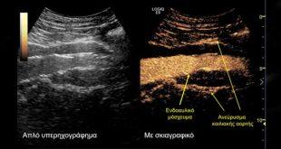Πρωτοποριακή θεραπεία του υπερνεφρικού ανευρύσματος της αορτής στο Ιατρικό Κέντρο Αθηνών
