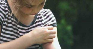 Δύο επιβεβαιωμένα περιστατικά λοίμωξης από τον ιό Δυτικού Νείλου σε Πιερία και Ξάνθη