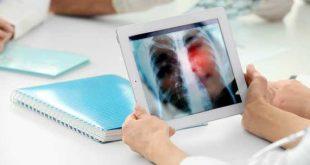 Διπλή επέκταση της ένδειξης του atezolizumab σε ασθενείς με καρκίνο του πνεύμονα