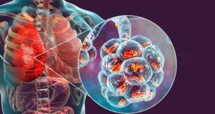 Διεθνής κλινική μελέτη για πιθανό ρόλο της τοσιλιζουμάμπης στην αντιμετώπιση σοβαρής πνευμονίας COVID-19