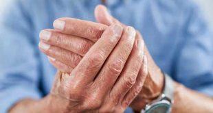 Σημαντική πρόοδος στην αντιμετώπιση της αρθρίτιδας  – Κλειδιά η έγκαιρη διάγνωση και αντιμετώπιση